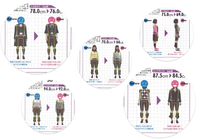 ゆがみーる雑誌掲載事例02 日経ヘルス ゆがみーるレッポト
